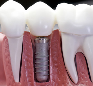 dental-implant-apopka-longwood
