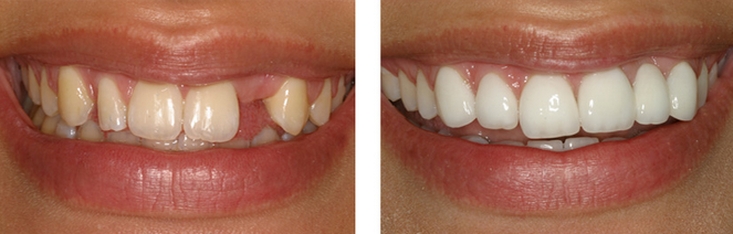 exmaple-dental-implants-apopka-orlando-longwood-altamonte
